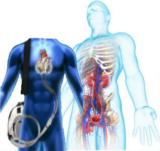 artificial-organs-market