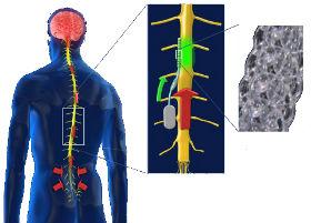 neuromodulation-market