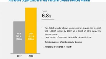 Vascular Closure Devices: Growing Preference for Radial Artery Procedure