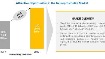 Neuroprosthetics Market: Increasing Prevalence of Diabetes in Neuroprosthetics