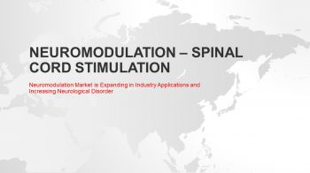 Neuromodulation Market: Growth Opportunities and Key Industry Insights
